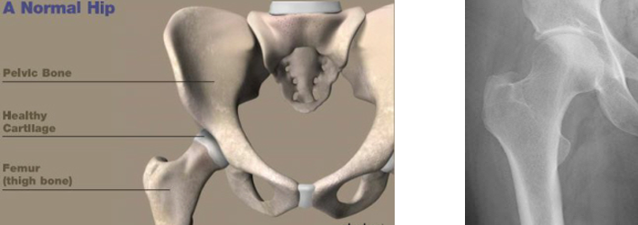 X-ray of a Normal Hip